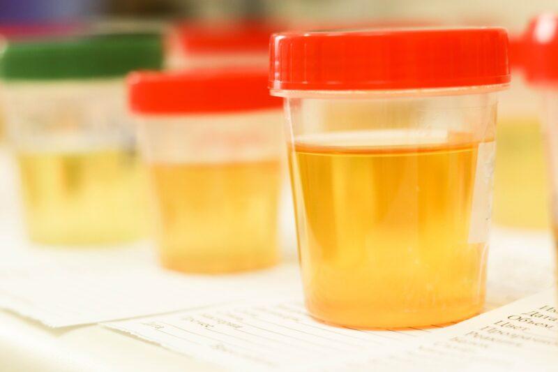 Urine Test Tasmania